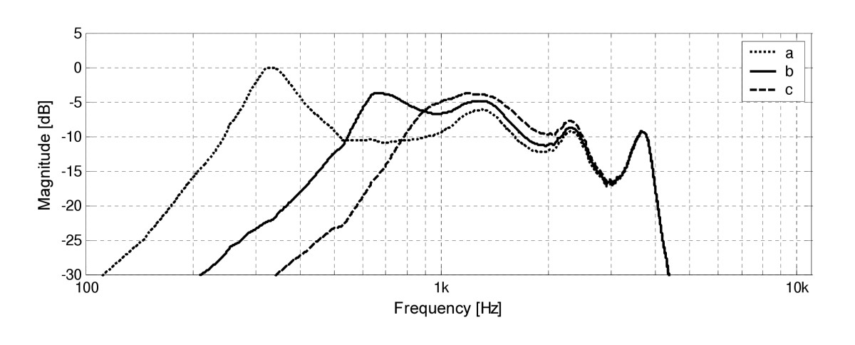 http://static-content.springer.com/image/art%3A10.1186%2F1746-1596-1-6/MediaObjects/13000_2006_Article_6_Fig4_HTML.jpg