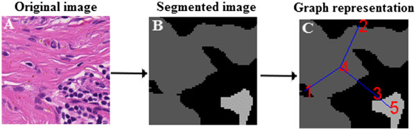 http://static-content.springer.com/image/art%3A10.1186%2F1746-1596-7-134/MediaObjects/13000_2012_685_Fig10_HTML.jpg