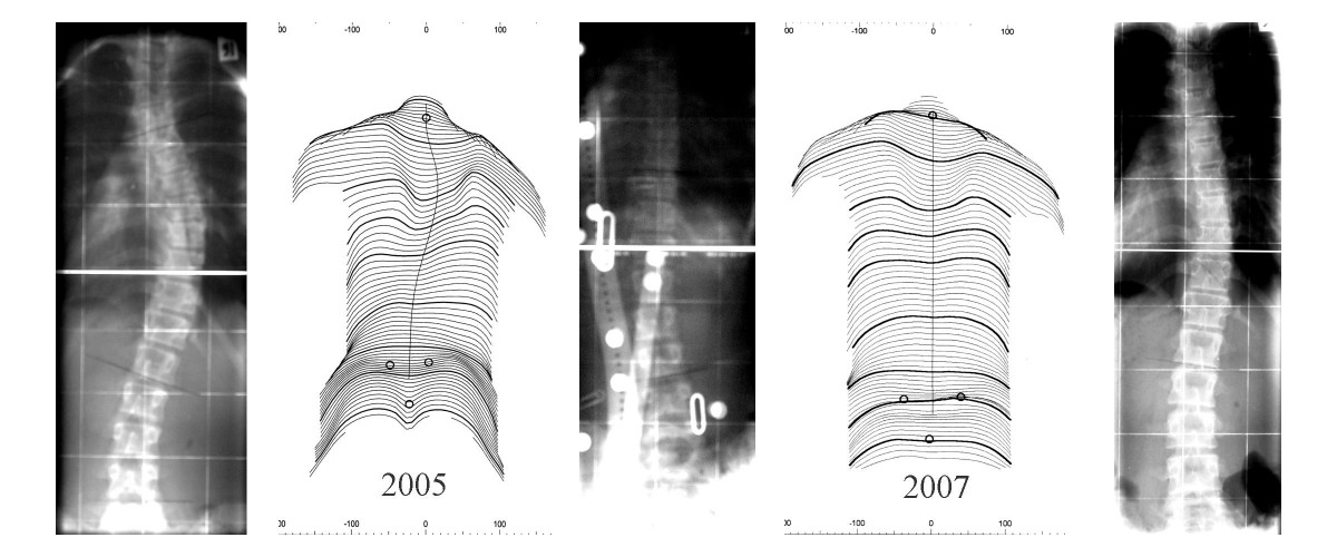 http://static-content.springer.com/image/art%3A10.1186%2F1748-7161-2-10/MediaObjects/13013_2007_Article_33_Fig2_HTML.jpg
