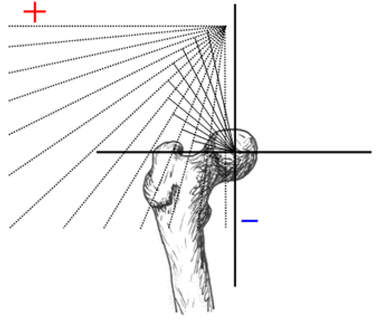 http://static-content.springer.com/image/art%3A10.1186%2F1749-799X-6-6/MediaObjects/13018_2010_Article_241_Fig9_HTML.jpg