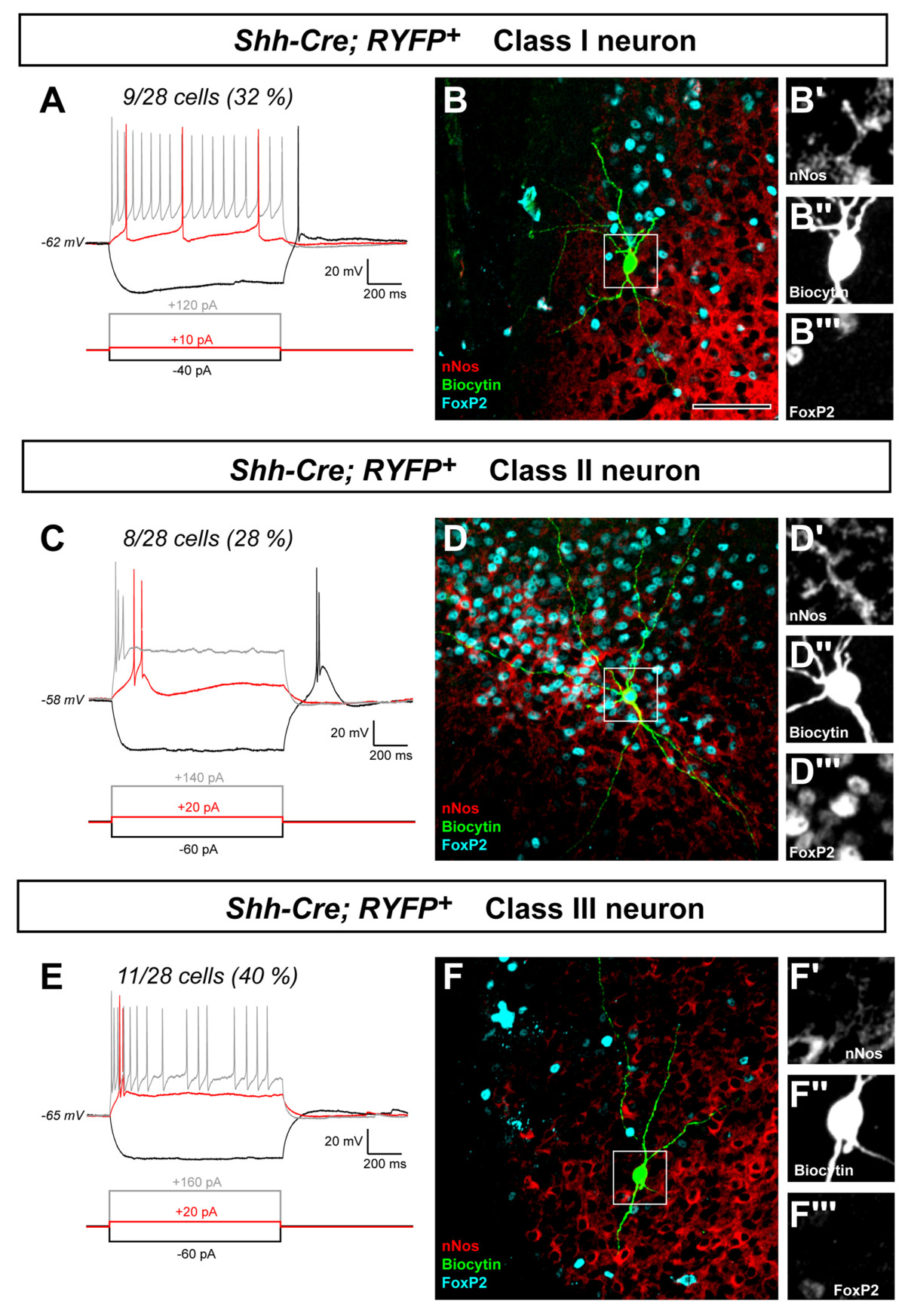http://static-content.springer.com/image/art%3A10.1186%2F1749-8104-5-14/MediaObjects/13064_2010_Article_126_Fig8_HTML.jpg