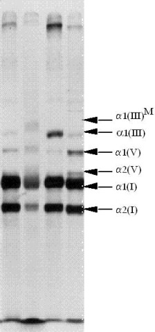 http://static-content.springer.com/image/art%3A10.1186%2F1750-1172-2-32/MediaObjects/13023_2007_Article_83_Fig5_HTML.jpg