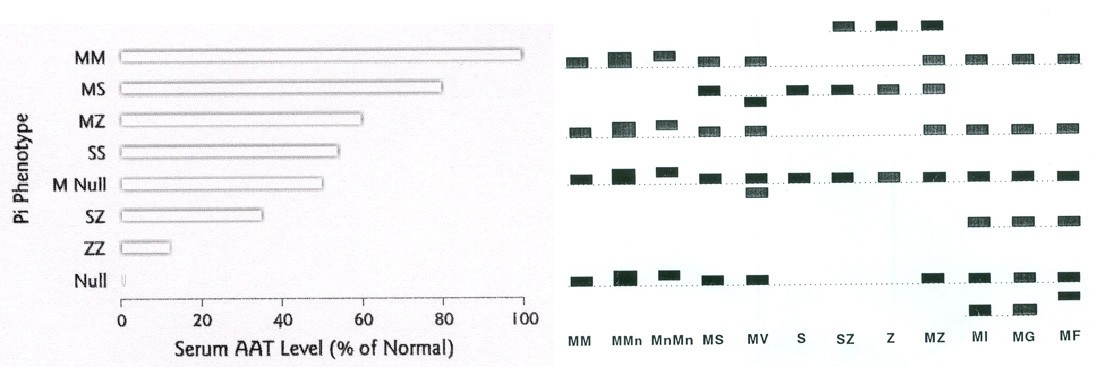 http://static-content.springer.com/image/art%3A10.1186%2F1750-1172-3-16/MediaObjects/13023_2007_Article_116_Fig1_HTML.jpg