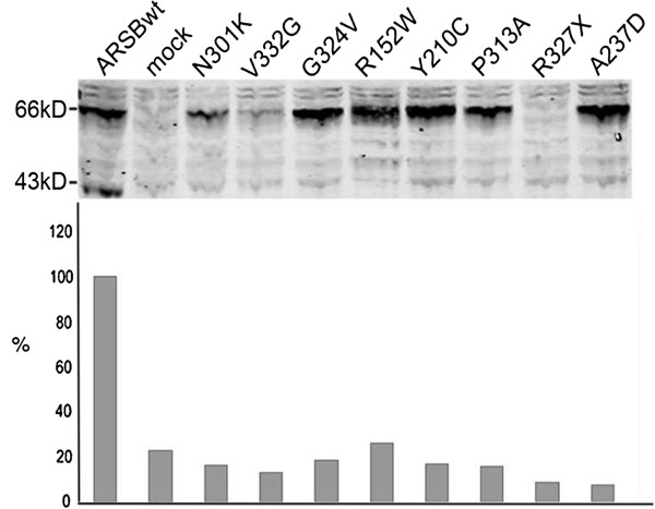 http://static-content.springer.com/image/art%3A10.1186%2F1750-1172-8-51/MediaObjects/13023_2013_554_Fig1_HTML.jpg