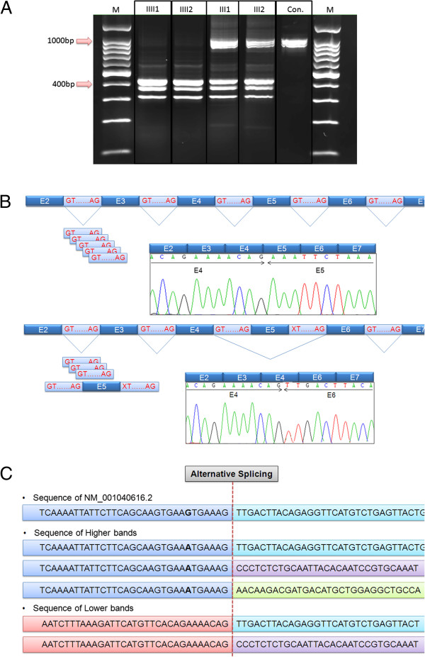 http://static-content.springer.com/image/art%3A10.1186%2F1750-1172-8-87/MediaObjects/13023_2013_635_Fig3_HTML.jpg