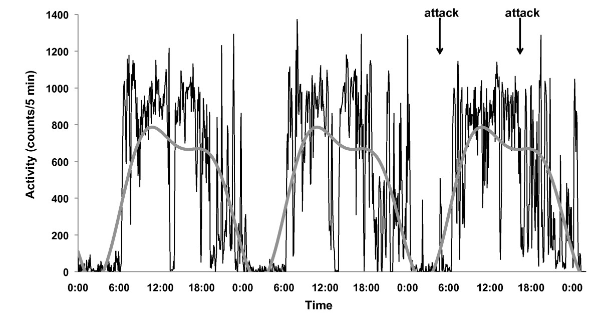 http://static-content.springer.com/image/art%3A10.1186%2F1751-0759-2-23/MediaObjects/13030_2008_Article_47_Fig1_HTML.jpg
