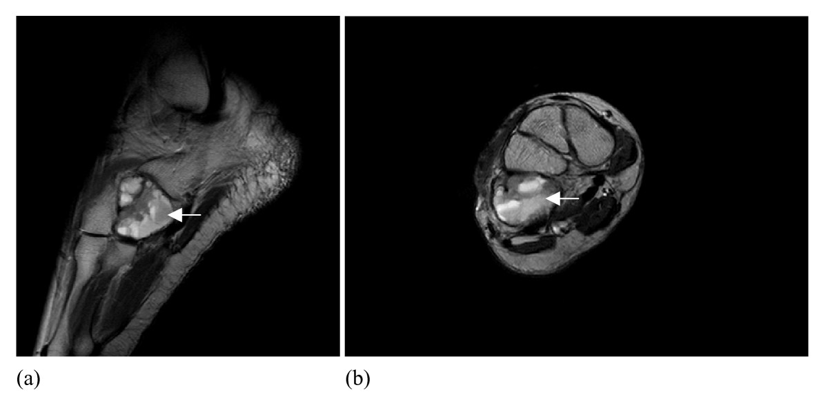 http://static-content.springer.com/image/art%3A10.1186%2F1752-1947-1-135/MediaObjects/13256_2007_Article_135_Fig2_HTML.jpg