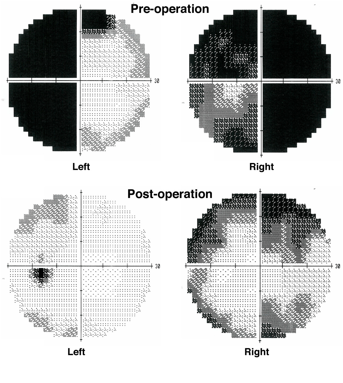 http://static-content.springer.com/image/art%3A10.1186%2F1752-1947-1-74/MediaObjects/13256_2007_Article_74_Fig3_HTML.jpg