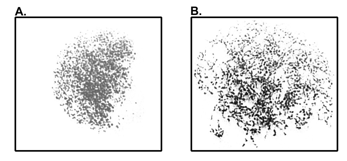http://static-content.springer.com/image/art%3A10.1186%2F1755-8166-3-20/MediaObjects/13039_2010_Article_75_Fig2_HTML.jpg