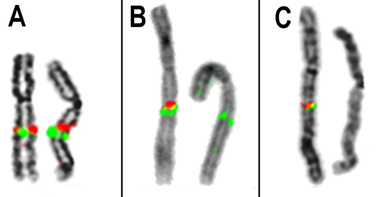 http://static-content.springer.com/image/art%3A10.1186%2F1755-8166-5-30/MediaObjects/13039_2012_Article_130_Fig2_HTML.jpg