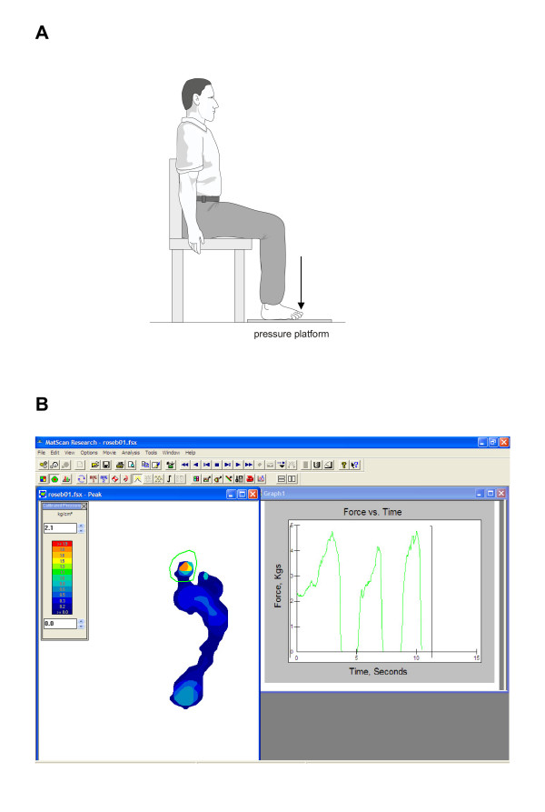 http://static-content.springer.com/image/art%3A10.1186%2F1757-1146-2-2/MediaObjects/13047_2008_Article_76_Fig3_HTML.jpg