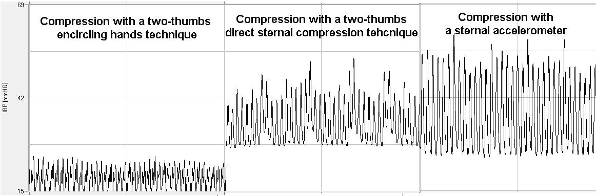 http://static-content.springer.com/image/art%3A10.1186%2F1757-7241-21-51/MediaObjects/13049_2013_Article_634_Fig2_HTML.jpg