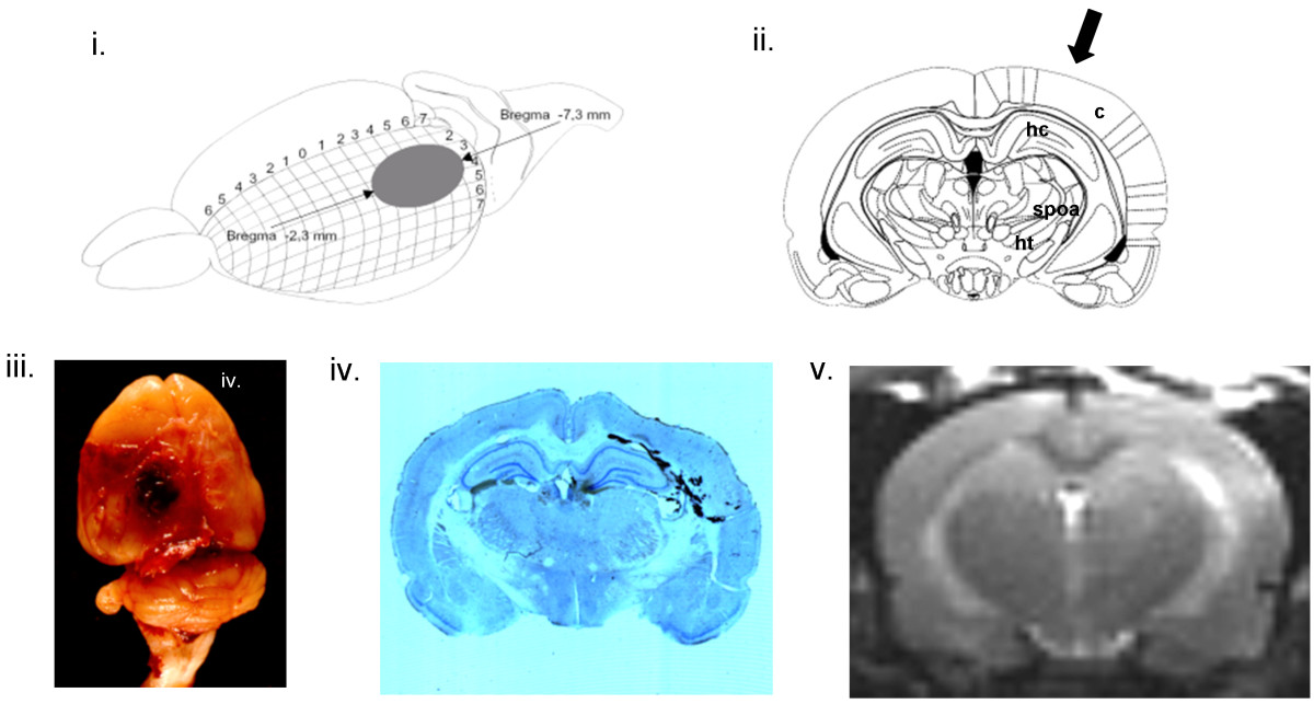 http://static-content.springer.com/image/art%3A10.1186%2F1757-7241-21-77/MediaObjects/13049_2013_Article_708_Fig1_HTML.jpg