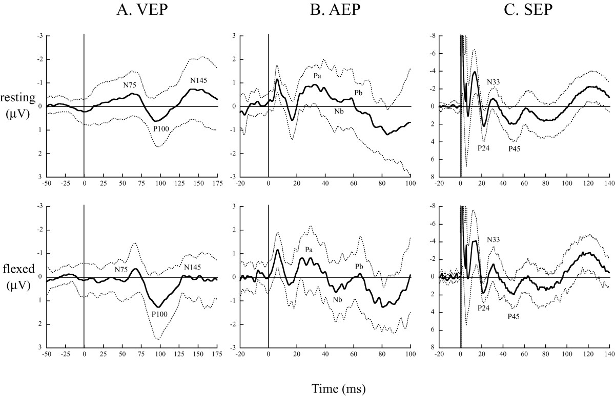http://static-content.springer.com/image/art%3A10.1186%2F1880-6805-31-31/MediaObjects/40101_2012_Article_29_Fig4_HTML.jpg