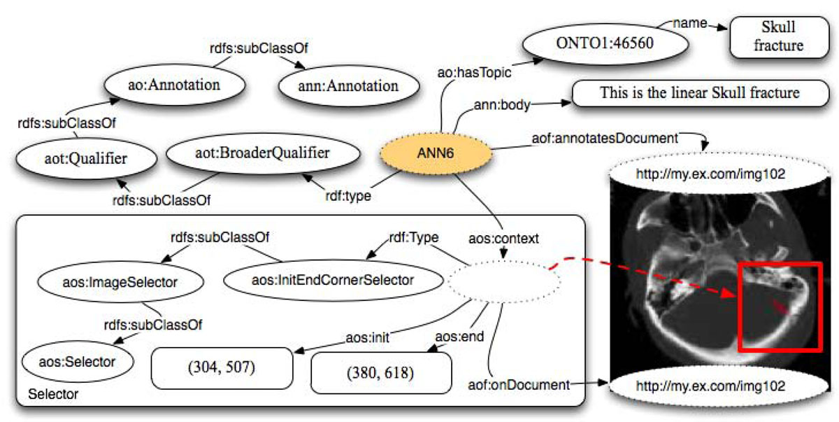 http://static-content.springer.com/image/art%3A10.1186%2F2041-1480-2-S2-S4/MediaObjects/13326_2011_Article_30_Fig6_HTML.jpg