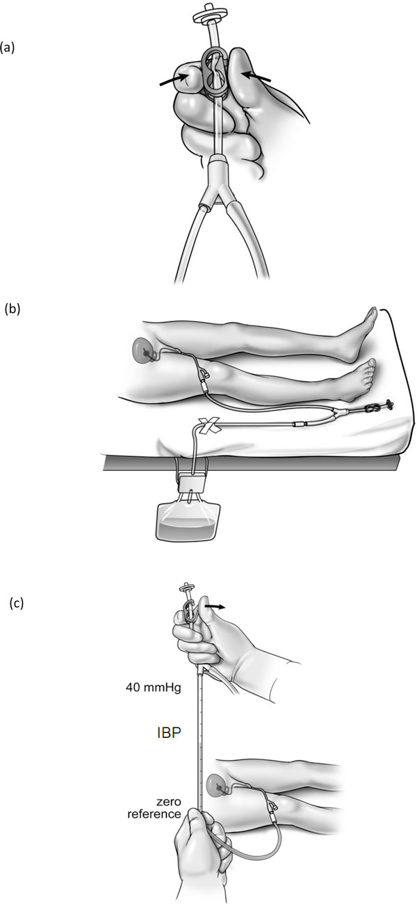 http://static-content.springer.com/image/art%3A10.1186%2F2110-5820-2-S1-S10/MediaObjects/13613_2012_Article_73_Fig2_HTML.jpg