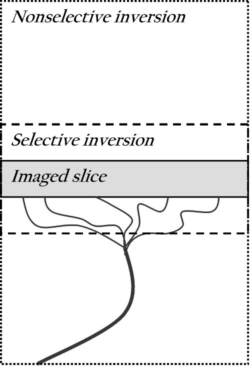 http://static-content.springer.com/image/art%3A10.1186%2F2191-219X-2-47/MediaObjects/13550_2012_Article_111_Fig2_HTML.jpg