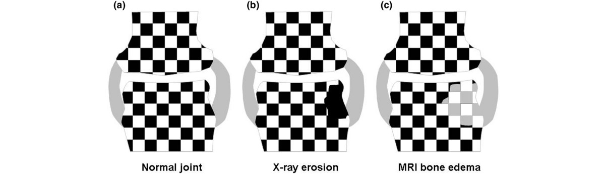 http://static-content.springer.com/image/art%3A10.1186%2Far2512/MediaObjects/13075_2008_Article_2361_Fig2_HTML.jpg