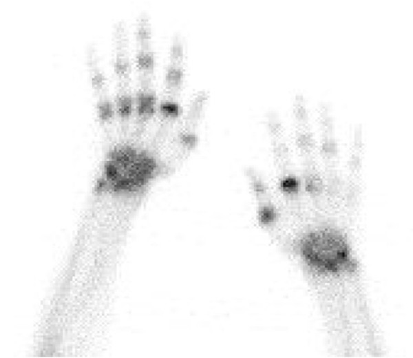 http://static-content.springer.com/image/art%3A10.1186%2Far4542/MediaObjects/13075_2013_4266_Fig3_HTML.jpg