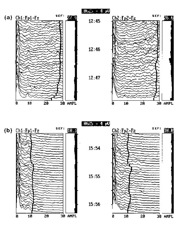 http://static-content.springer.com/image/art%3A10.1186%2Fcc3/MediaObjects/13054_1996_Article_3_Fig3_HTML.jpg