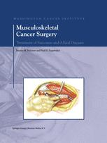 Musculoskeletal Cancer Surgery