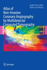 Atlas of Non-Invasive Coronary Angiography by Multidetector Computed Tomography