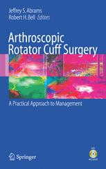 Arthroscopic Rotator Cuff Surgery