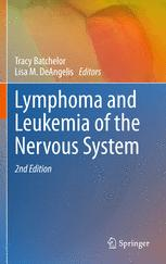 Lymphoma and Leukemia of the Nervous System