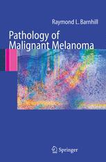 Pathology of Malignant Melanoma