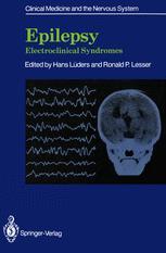 Epilepsy: Electroclinical Syndromes