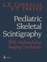 Pediatric Skeletal Scintigraphy