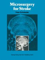 Microsurgery for Stroke
