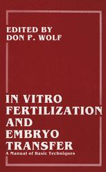 In Vitro Fertilization and Embryo Transfer
