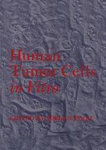 Human Tumor Cells in Vitro