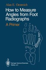 How to Measure Angles from Foot Radiographs