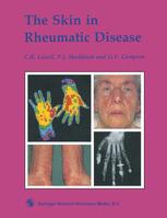 The Skin in Rheumatic Disease