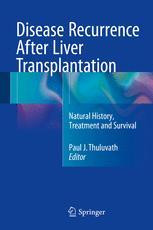 Disease Recurrence After Liver Transplantation