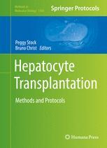 Hepatocyte Transplantation
