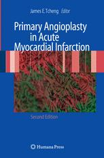 Primary Angioplasty in Acute Myocardial Infarction