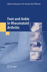 Foot and ankle in rheumatoid arthritis
