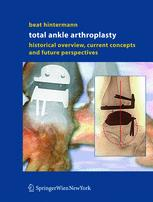 Total Ankle Arthroplasty