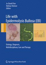 Life with Epidermolysis Bullosa (EB)