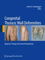 Congenital Thoracic Wall Deformities