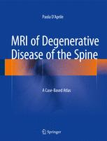 MRI of Degenerative Disease of the Spine
