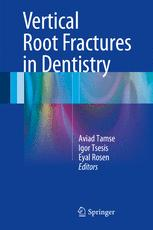 Vertical Root Fractures in Dentistry