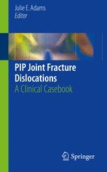 PIP Joint Fracture Dislocations