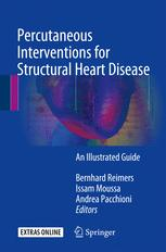 Percutaneous Interventions for Structural Heart Disease