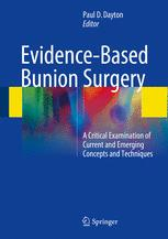 Evidence-Based Bunion Surgery