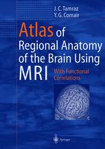 Atlas of Regional Anatomy of the Brain Using MRI