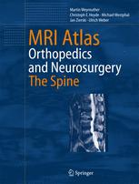 MRI Atlas Orthopedics and Neurosurgery The Spine